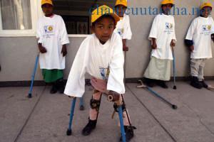Bệnh nhân bại liệt