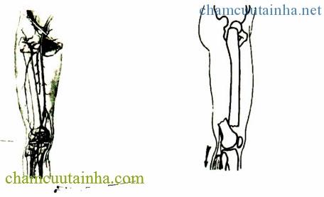 Mạch máu đùi và Di lệch gãy 1/3 dưới xương đùi