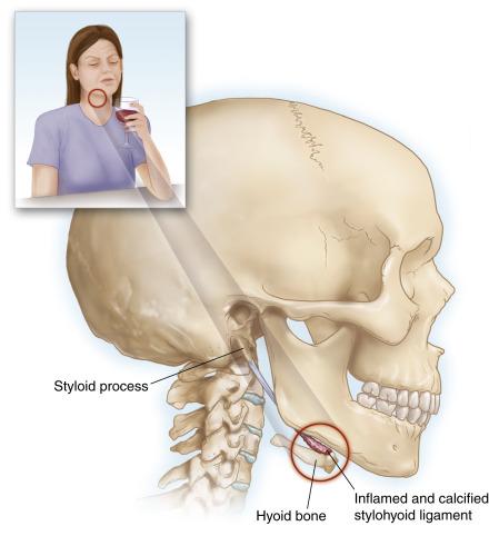 Hội chứng xương móng: Điều trị bằng châm cứu